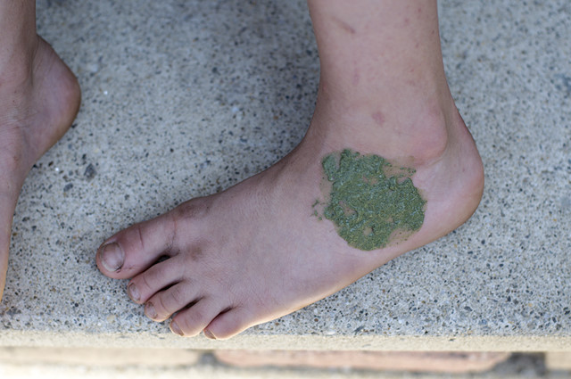 green paste on foot